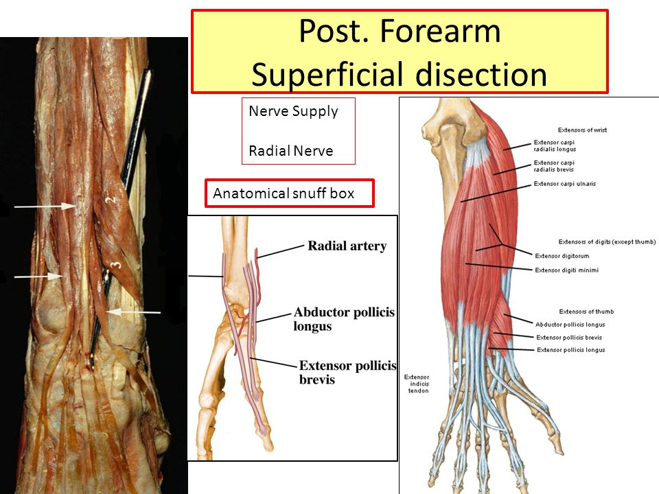 Post. Forearm Superficial disection