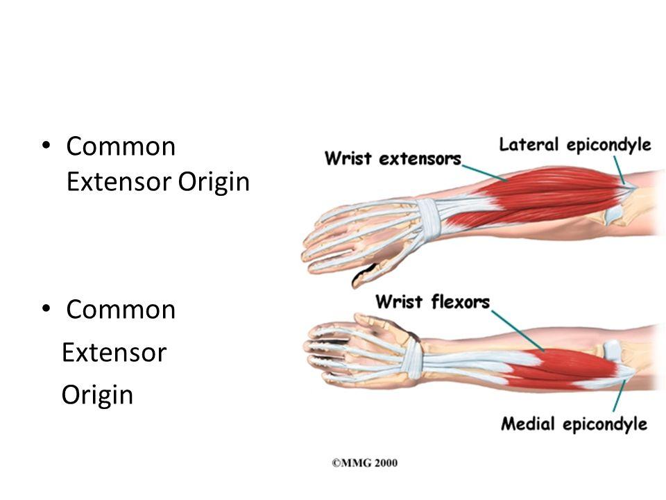 Common Extensor Origin