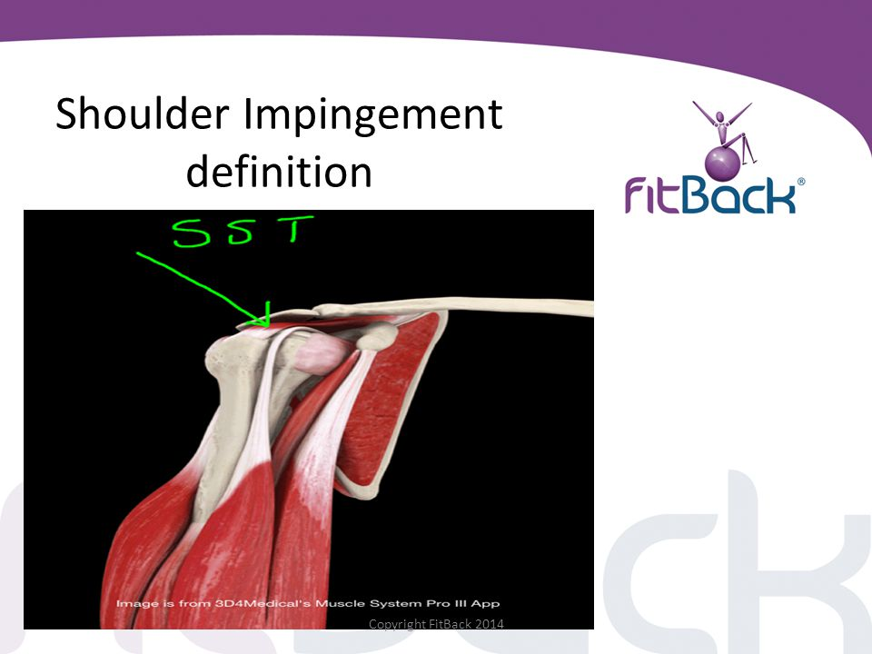 Shoulder Impingement definition