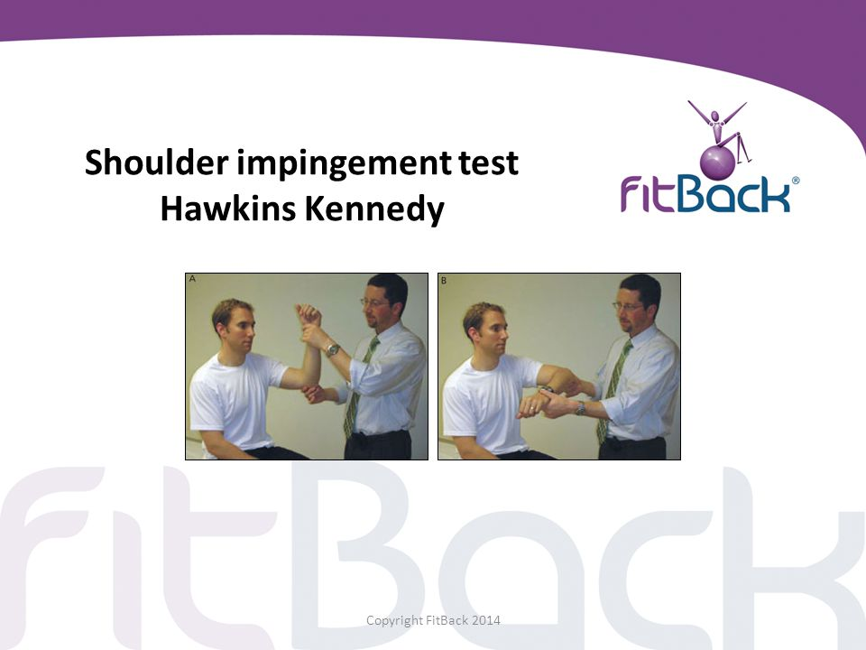 Shoulder impingement test Hawkins Kennedy