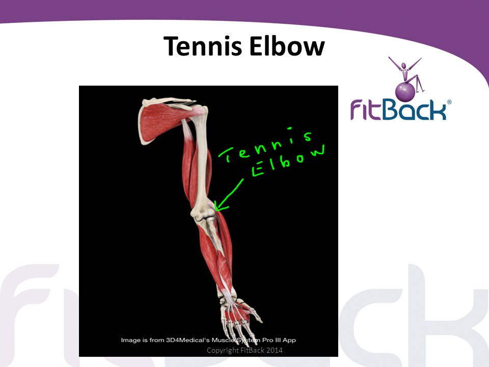 Tennis Elbow Copyright FitBack 2014