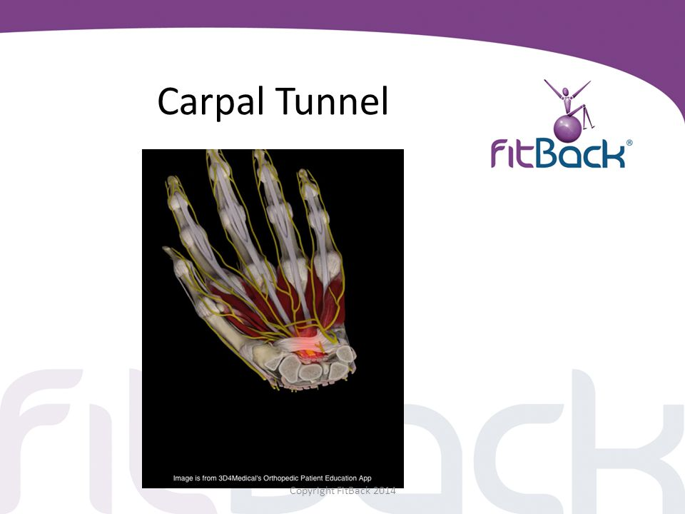 Carpal Tunnel Copyright FitBack 2014