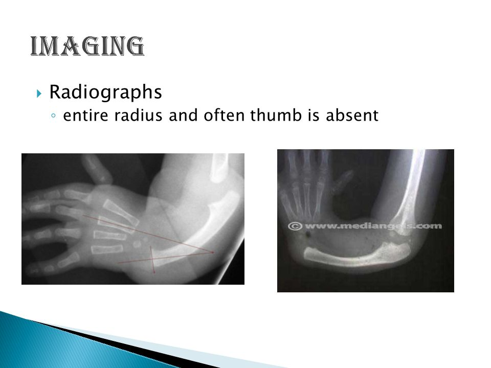 Imaging Radiographs entire radius and often thumb is absent