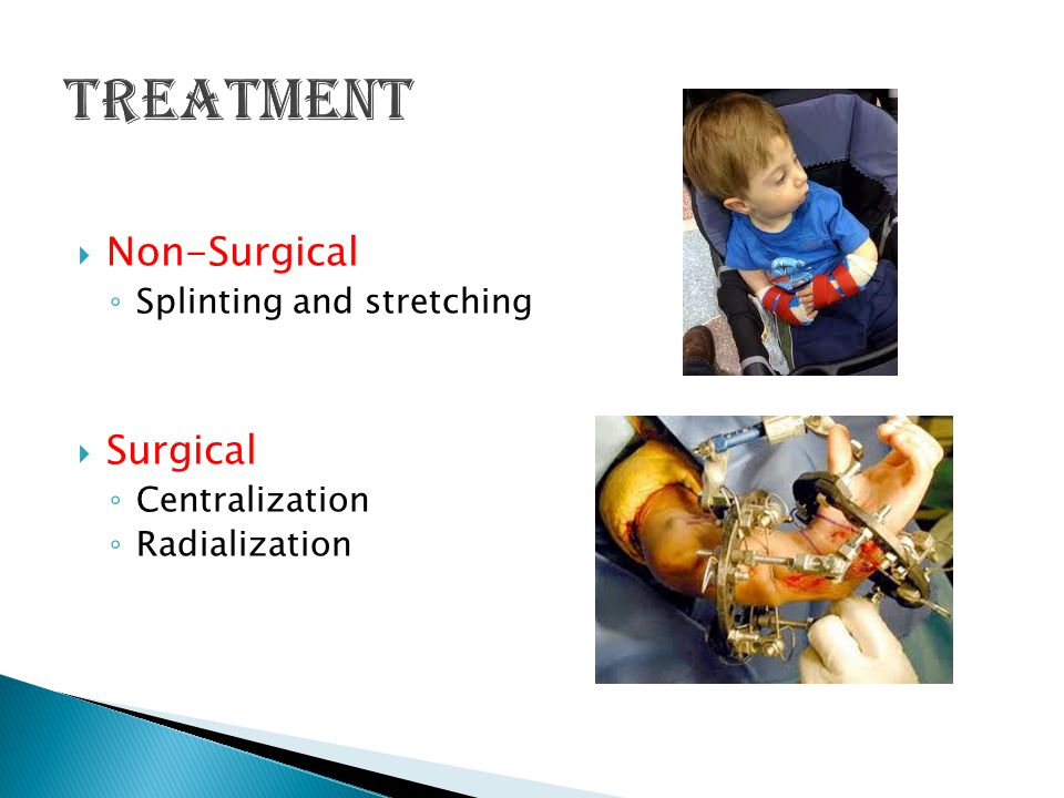 Treatment Non-Surgical Surgical Splinting and stretching