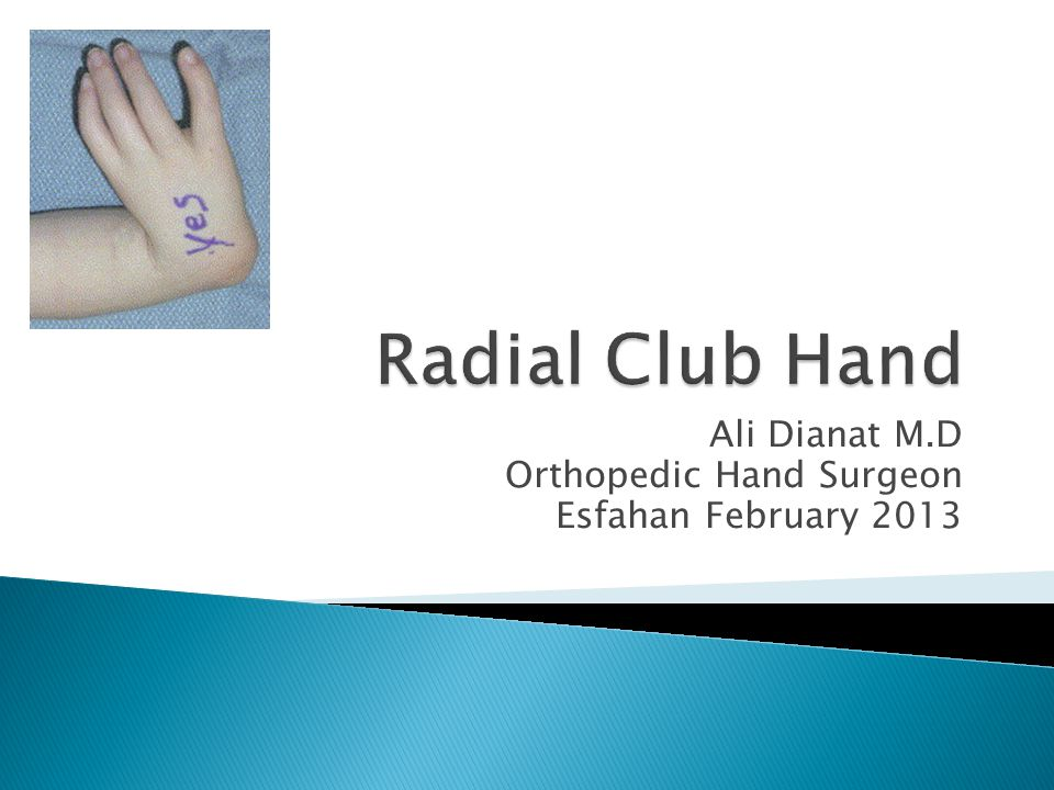 Ali Dianat M.D Orthopedic Hand Surgeon Esfahan February 2013