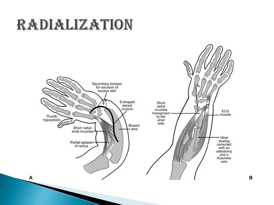 Radialization