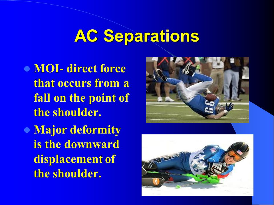 AC Separations MOI- direct force that occurs from a fall on the point of the shoulder.