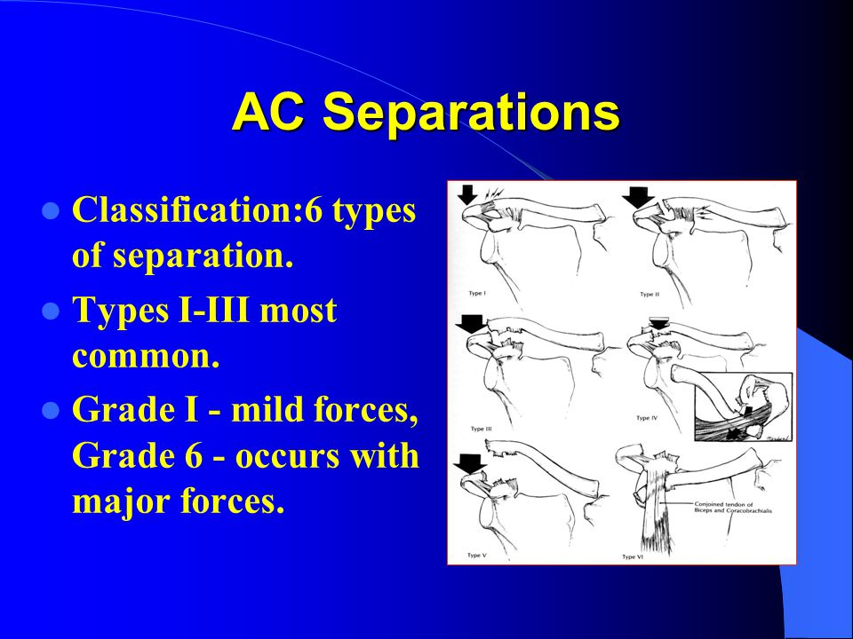 AC Separations Classification:6 types of separation.