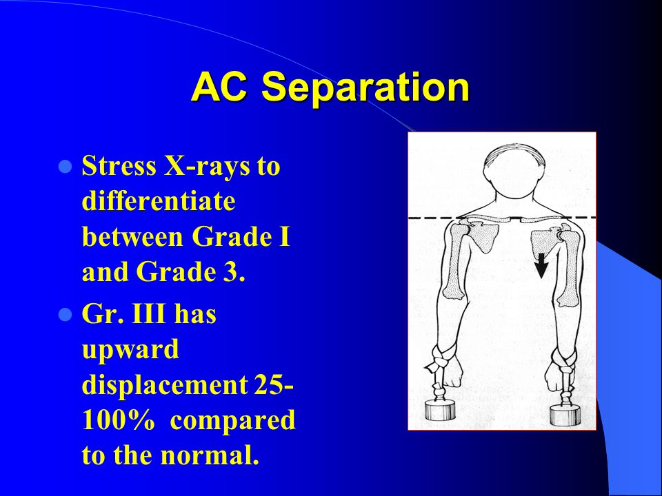 AC Separation Stress X-rays to differentiate between Grade I and Grade 3.