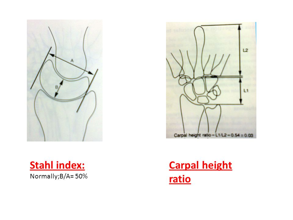 Stahl index: Normally;B/A= 50% Carpal height ratio