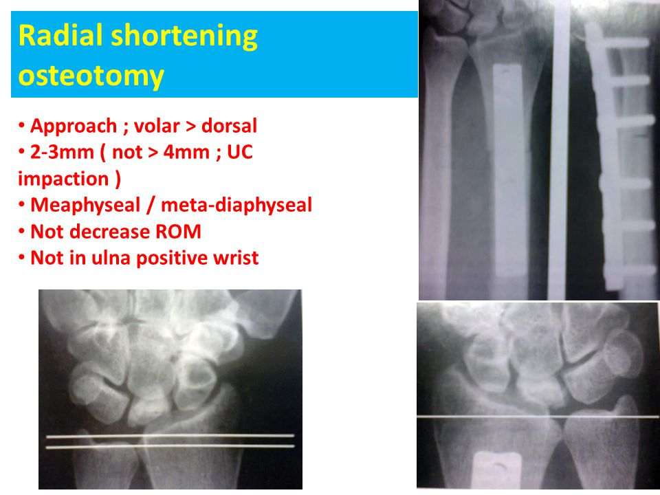 Radial shortening osteotomy