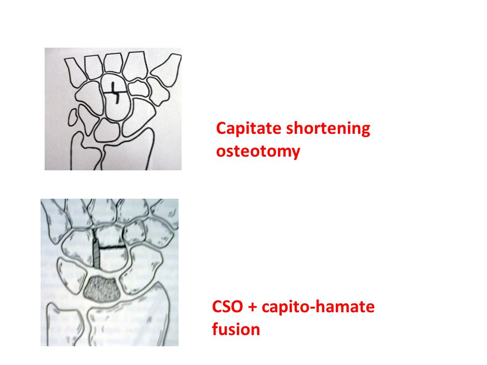 Capitate shortening osteotomy