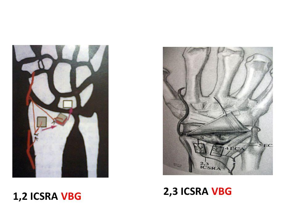 2,3 ICSRA VBG 1,2 ICSRA VBG