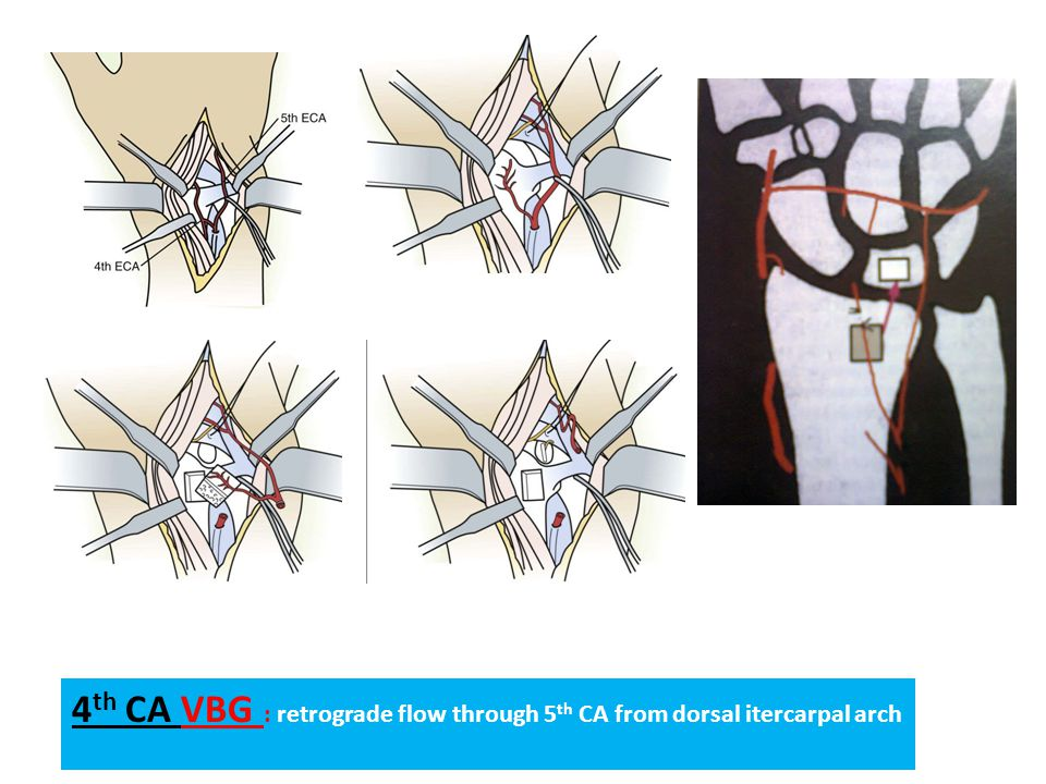 4th CA VBG : retrograde flow through 5th CA from dorsal itercarpal arch