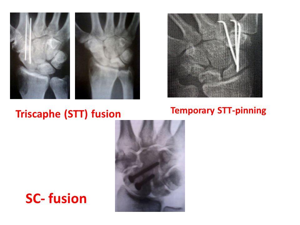 Temporary STT-pinning