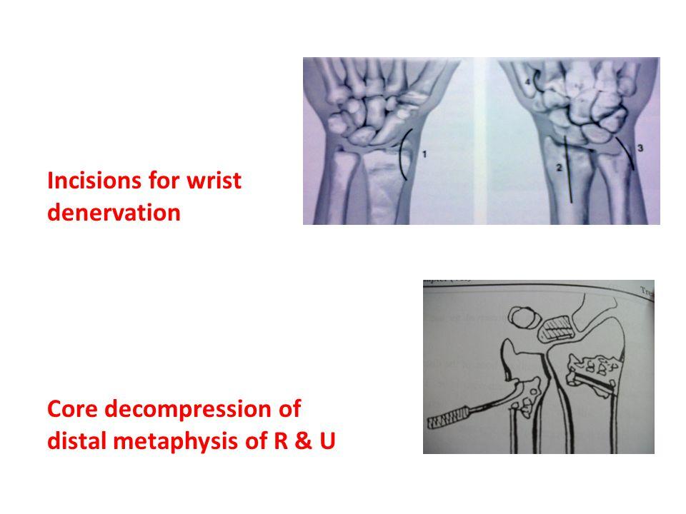 Incisions for wrist denervation
