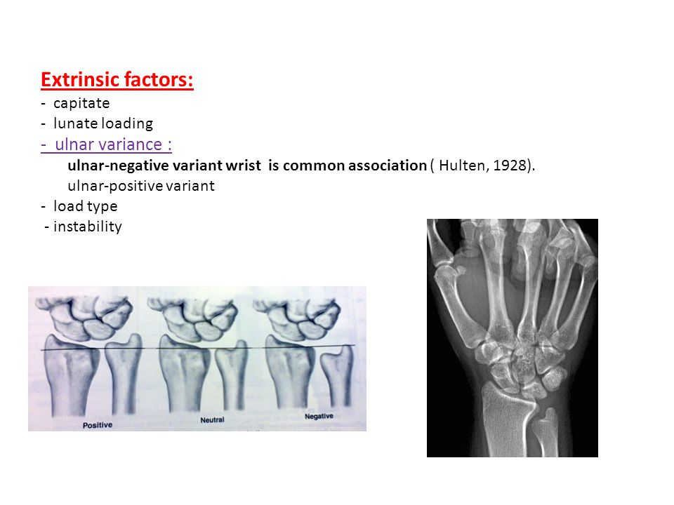 Extrinsic factors: - ulnar variance : capitate - lunate loading