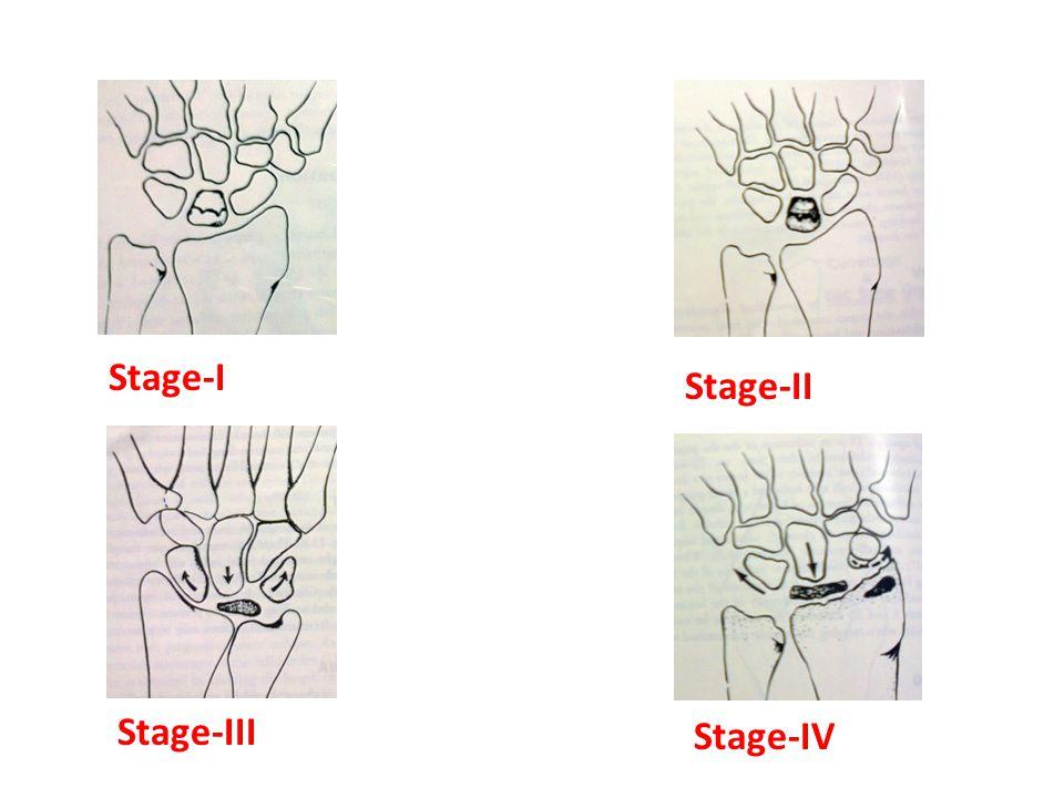 Stage-I Stage-II Stage-III Stage-IV