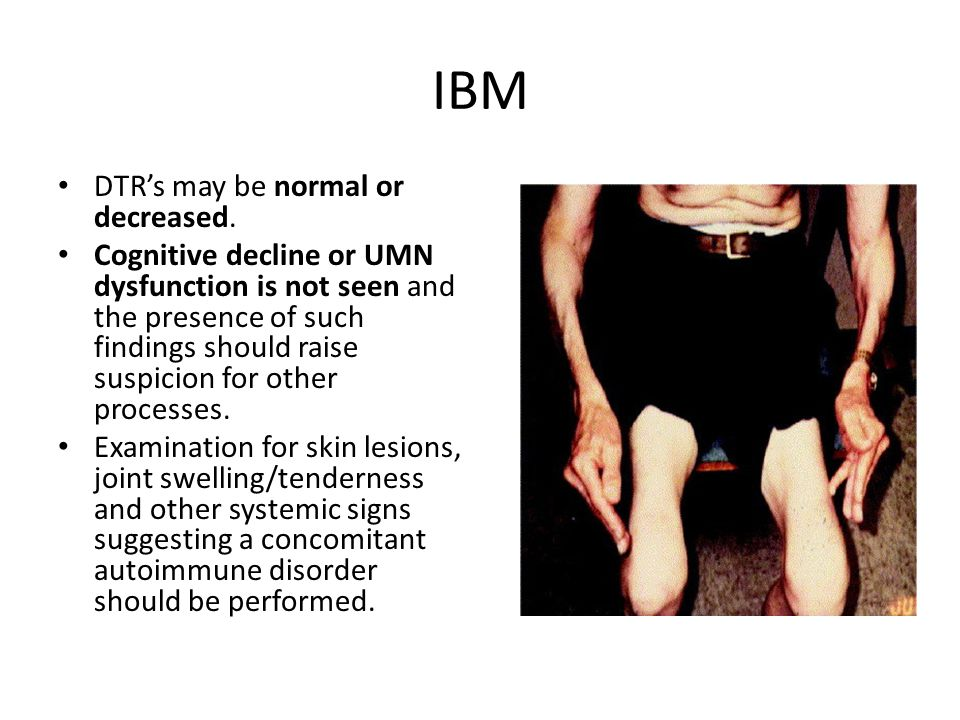 IBM DTR's may be normal or decreased.