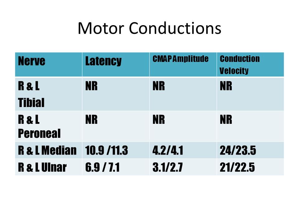 Motor Conductions Nerve Latency R & L Tibial NR R & L Peroneal