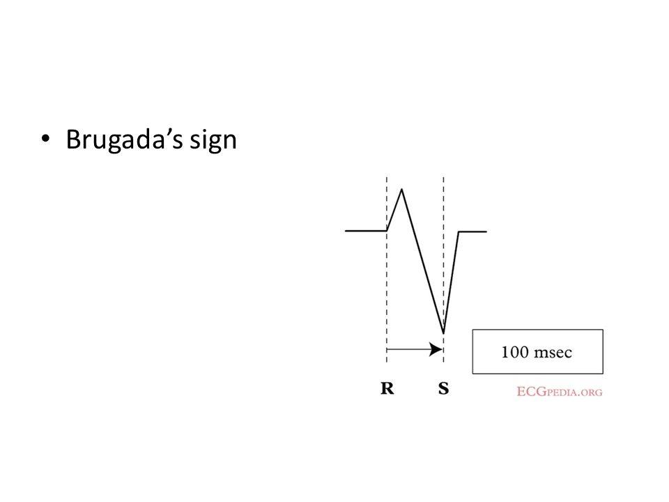 Brugada's sign