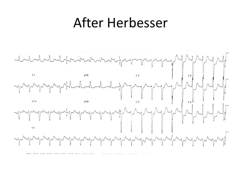 After Herbesser
