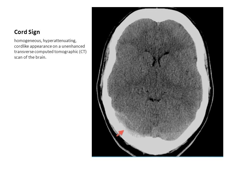 Cord Sign homogeneous, hyperattenuating, cordlike appearance on a unenhanced transverse computed tomographic (CT) scan of the brain.
