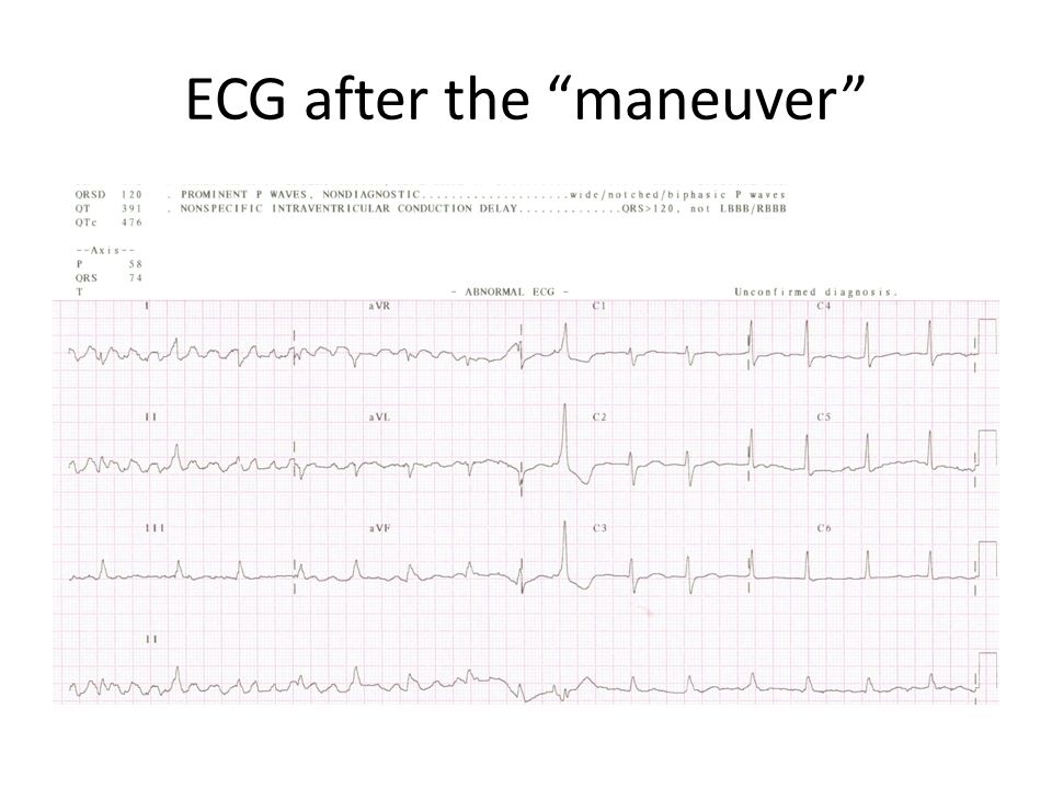 ECG after the maneuver