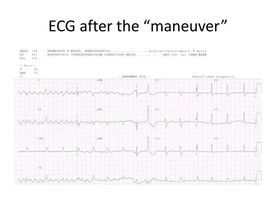 ECG after the maneuver