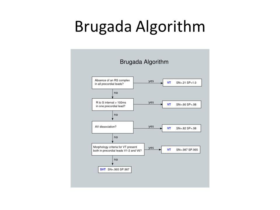 Brugada Algorithm