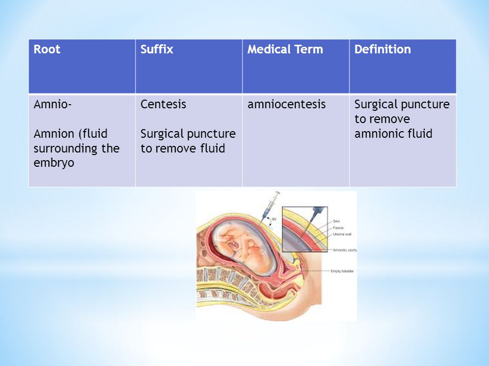 Root Suffix. Medical Term. Definition. Amnio- Amnion (fluid surrounding the embryo. Centesis. Surgical puncture to remove fluid.