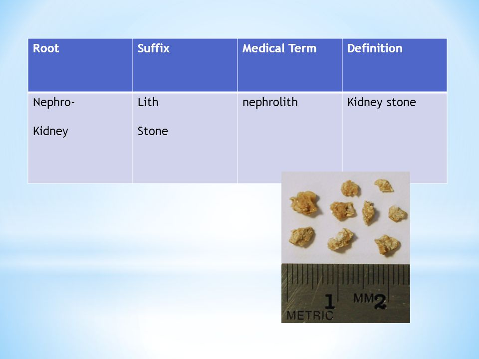 Root Suffix Medical Term Definition Nephro- Kidney Lith Stone nephrolith Kidney stone
