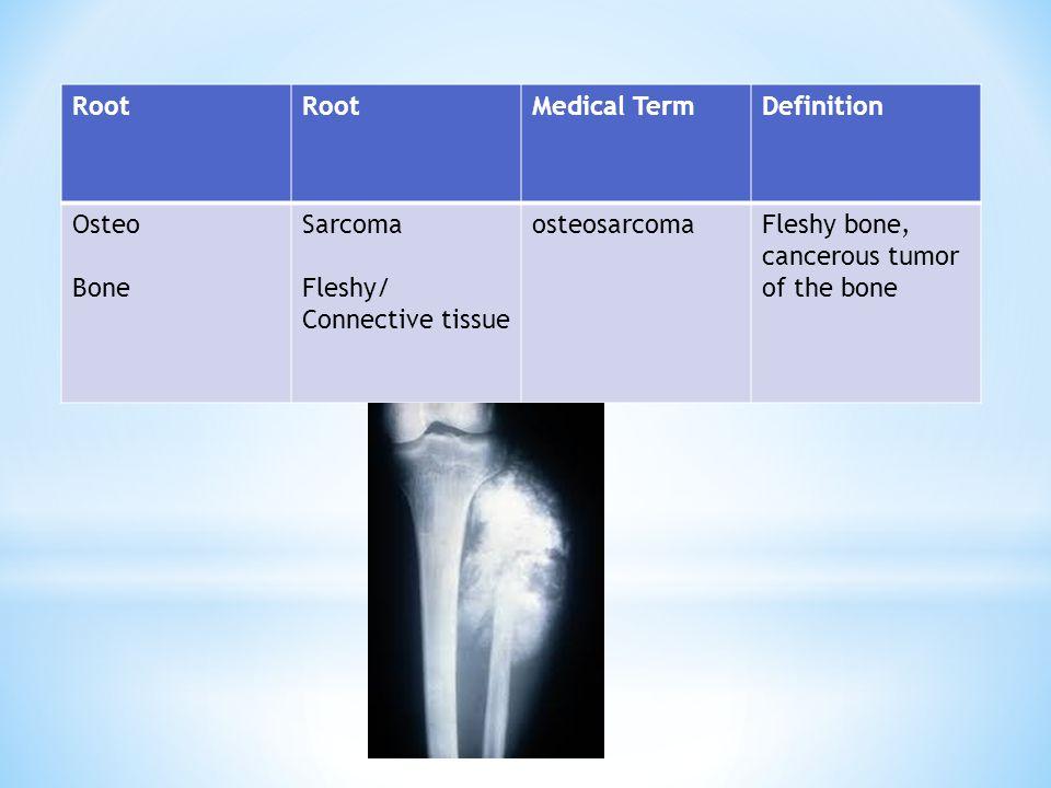 Root Medical Term. Definition. Osteo. Bone. Sarcoma. Fleshy/ Connective tissue. osteosarcoma.