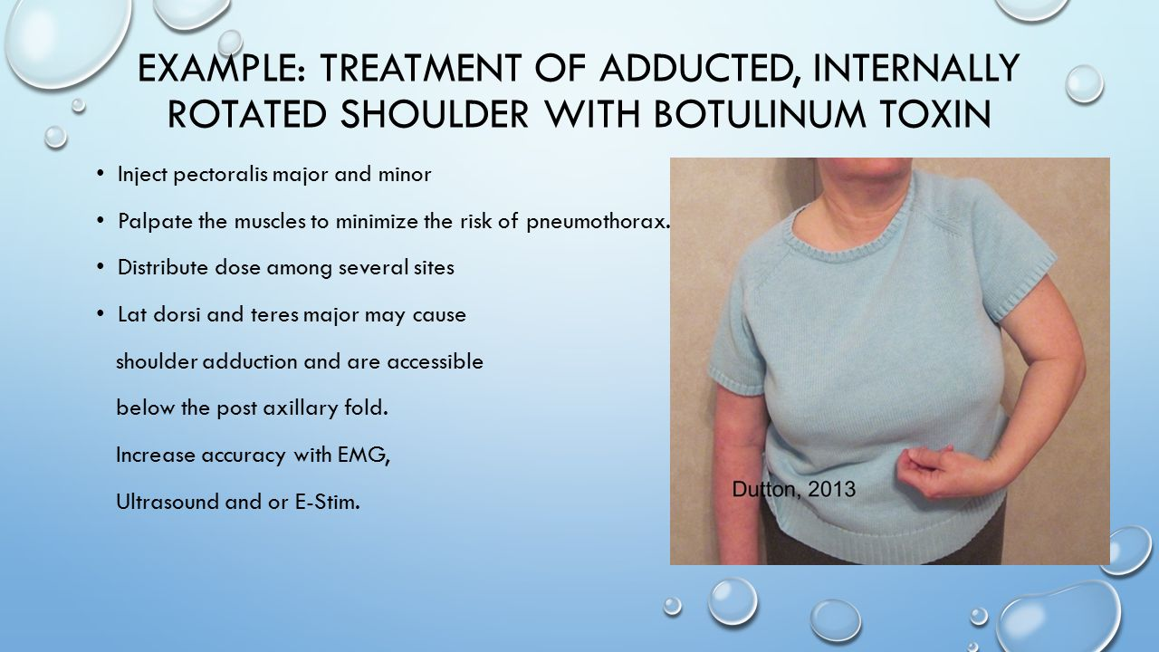 Example: treatment of adducted, internally rotated shoulder with botulinum toxin