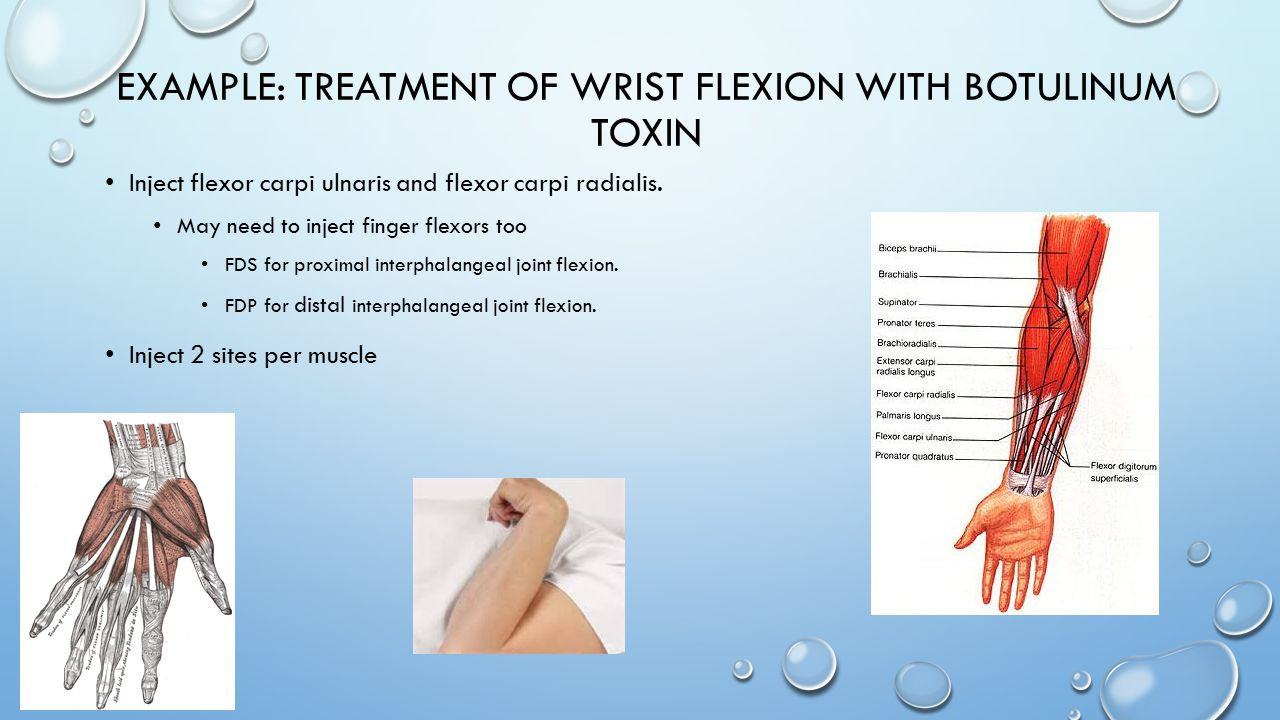 Example: Treatment of Wrist Flexion with Botulinum toxin