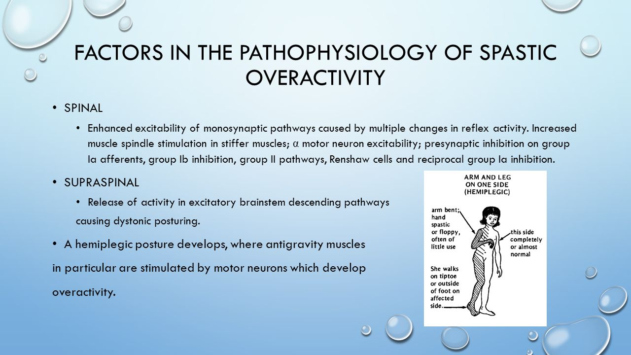 Factors in the pathophysiology of spastic overactivity