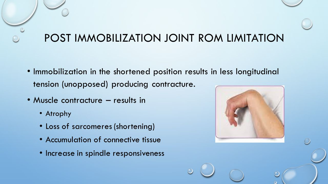 Post Immobilization Joint ROM Limitation