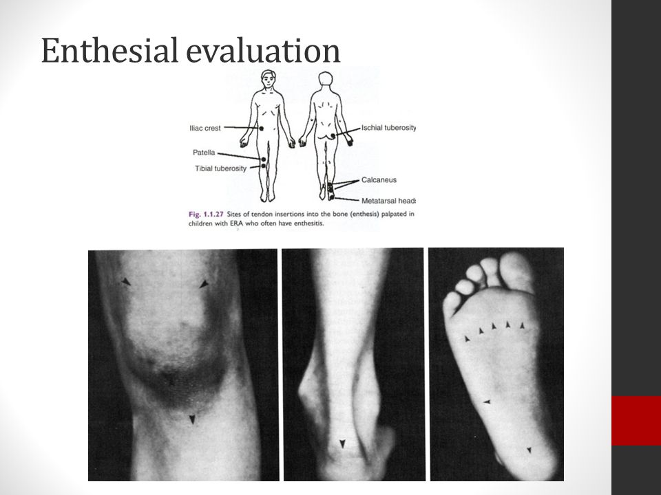 Enthesial evaluation