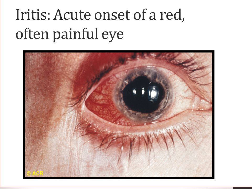 Iritis: Acute onset of a red, often painful eye