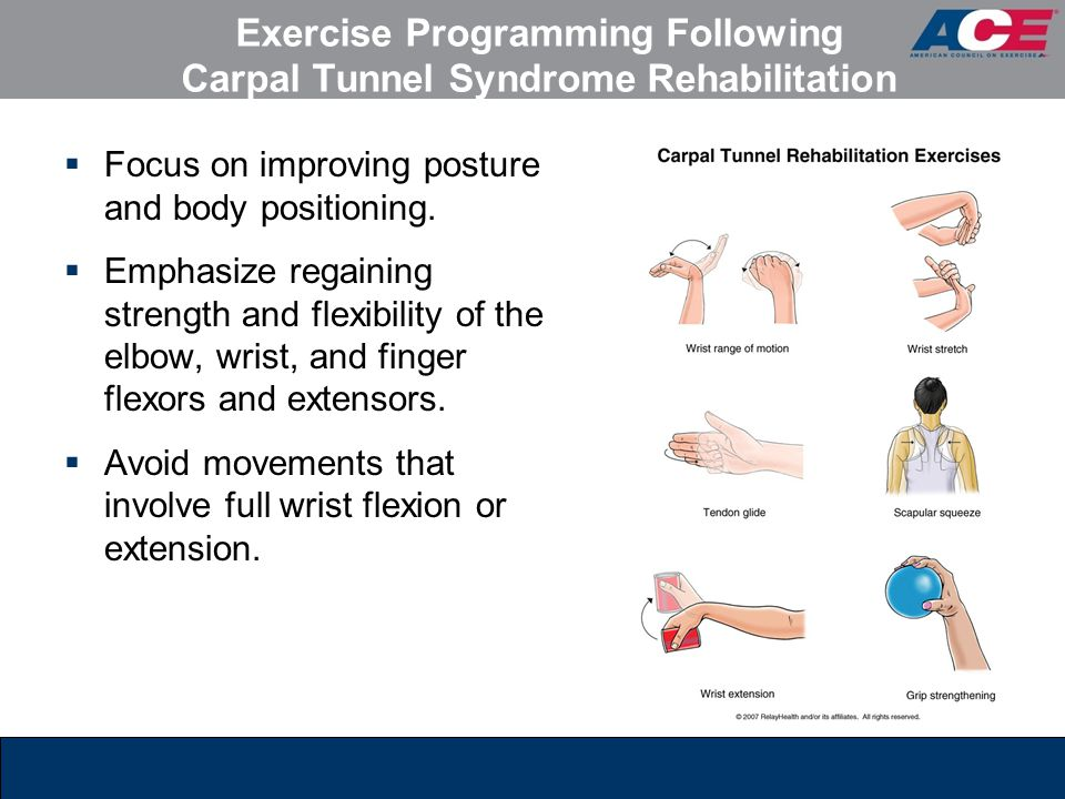 Exercise Programming Following Carpal Tunnel Syndrome Rehabilitation