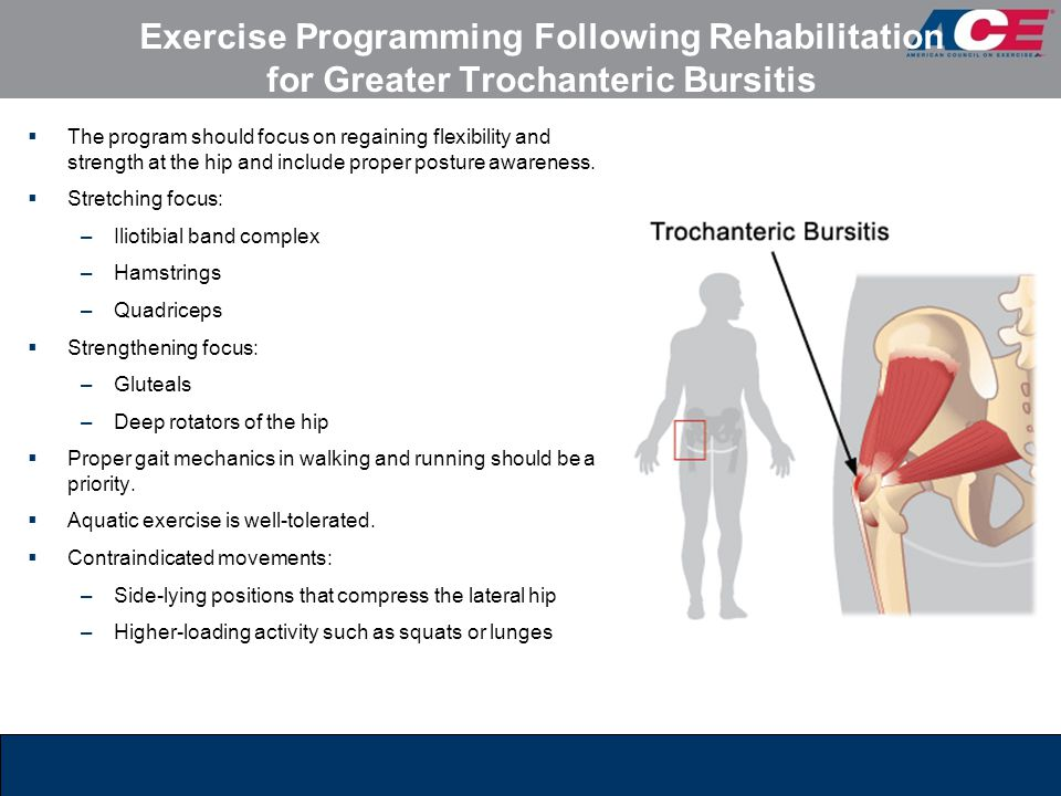 Exercise Programming Following Rehabilitation for Greater Trochanteric Bursitis