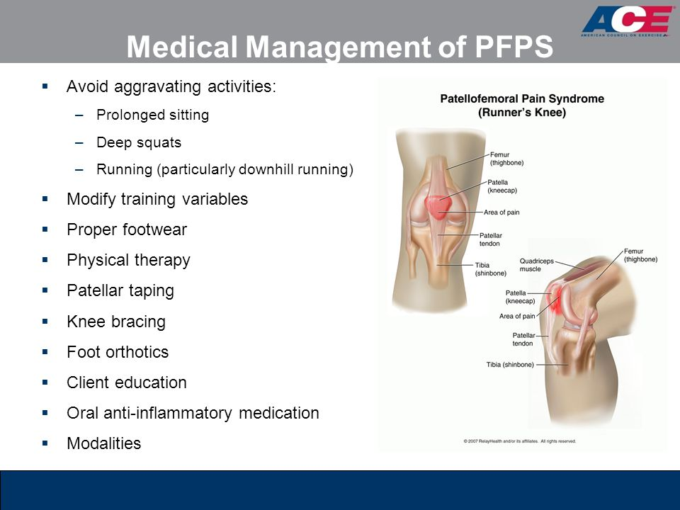 Medical Management of PFPS