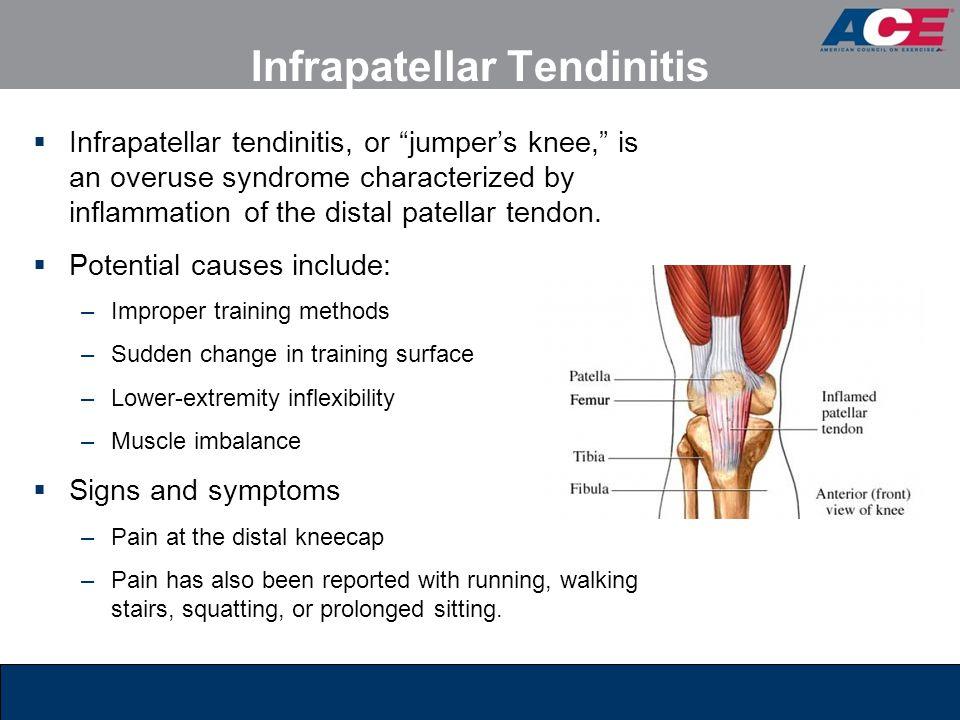 Infrapatellar Tendinitis