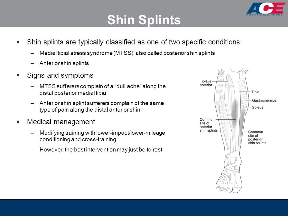 Shin Splints Shin splints are typically classified as one of two specific conditions: