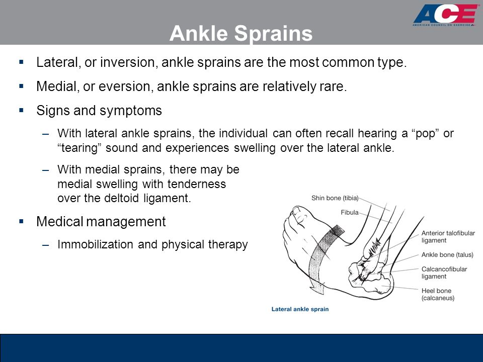 Ankle Sprains Lateral, or inversion, ankle sprains are the most common type. Medial, or eversion, ankle sprains are relatively rare.
