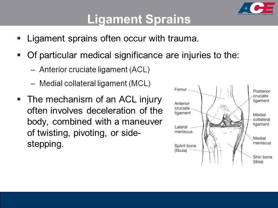 Ligament Sprains Ligament sprains often occur with trauma.