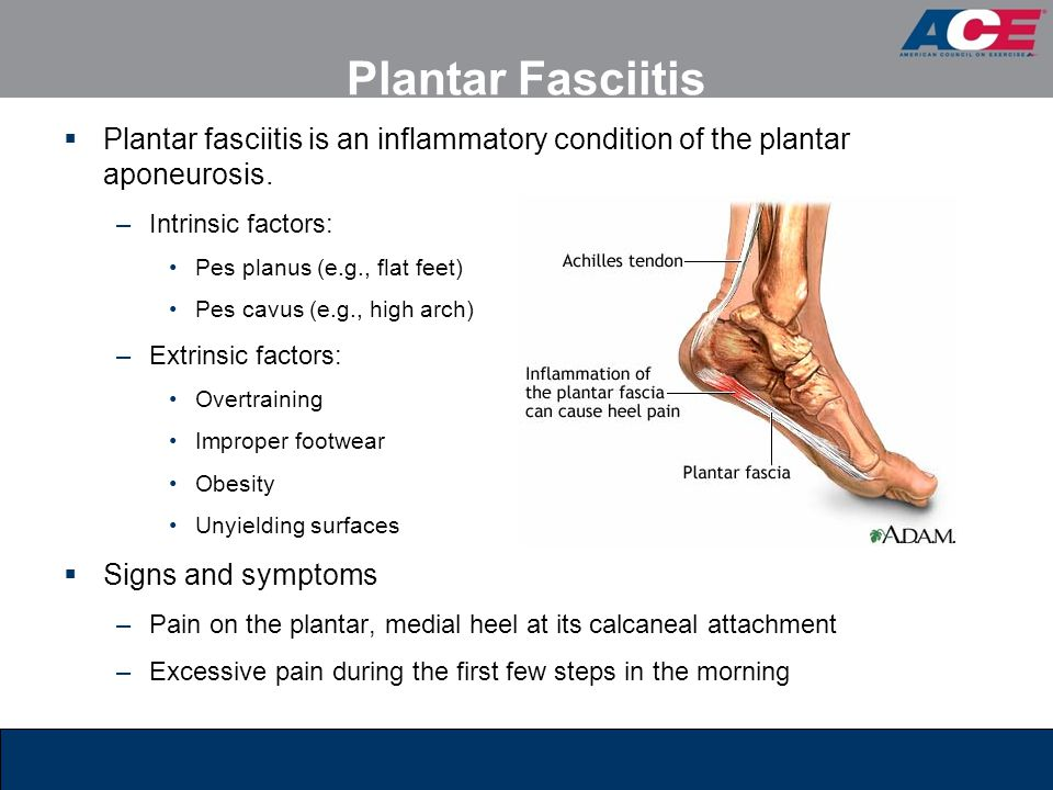 Plantar Fasciitis Plantar fasciitis is an inflammatory condition of the plantar aponeurosis. Intrinsic factors: