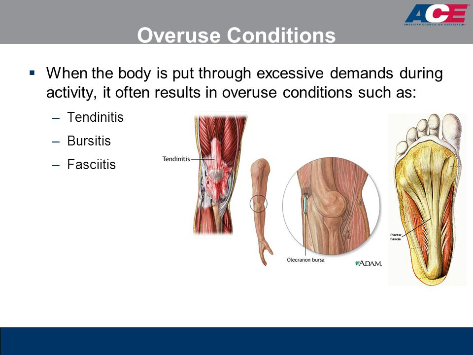 Overuse Conditions When the body is put through excessive demands during activity, it often results in overuse conditions such as: