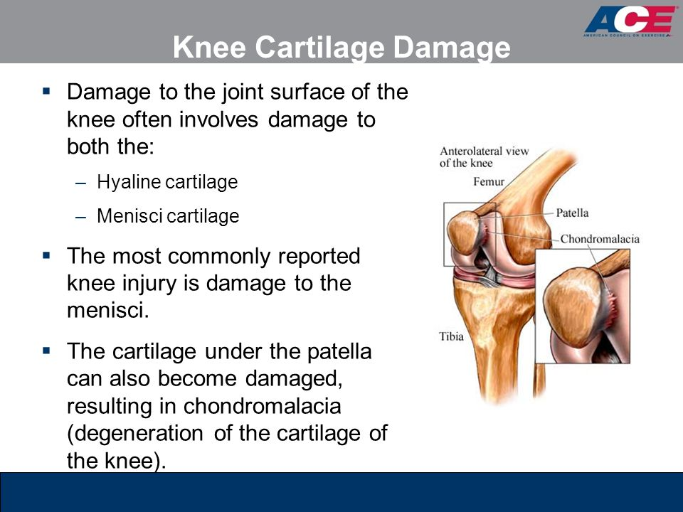 Knee Cartilage Damage Damage to the joint surface of the knee often involves damage to both the: Hyaline cartilage.