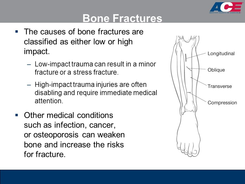 Bone Fractures The causes of bone fractures are classified as either low or high impact.